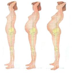 Зарядка по бубновскому остеохондроз грудного отдела