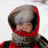 у ребенка обморожение