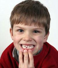 ребенок выбил зуб